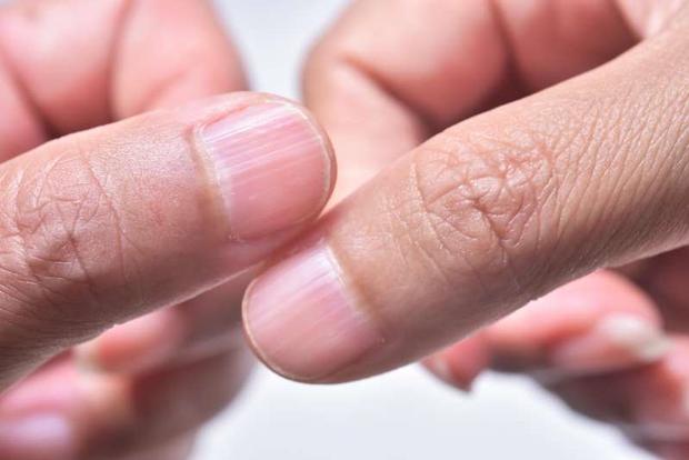 Người có gan xấu sẽ hiển thị rõ 4 vấn đề trên đôi bàn tay, mắc trúng 2 cái thì nên đi khám ngay - Ảnh 1.