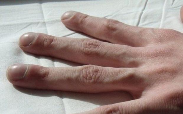 Người có gan xấu sẽ hiển thị rõ 4 vấn đề trên đôi bàn tay, mắc trúng 2 cái thì nên đi khám ngay - Ảnh 3.