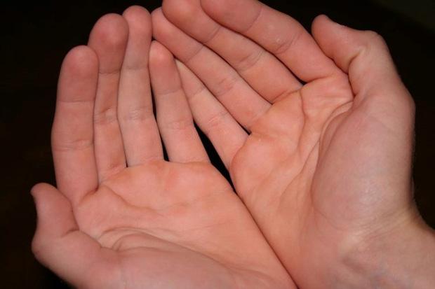 Người có gan xấu sẽ hiển thị rõ 4 vấn đề trên đôi bàn tay, mắc trúng 2 cái thì nên đi khám ngay - Ảnh 4.