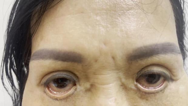 Mắt bị trợn ngược vì cắt mí tại spa - Ảnh 1.