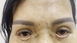 Mắt bị trợn ngược vì cắt mí tại spa