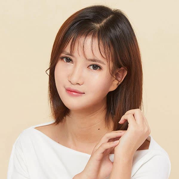 18 năm mặc cảm vì dị tật sứt môi, nữ sinh 2K1 lên đường sang Hàn Quốc làm 5 cuộc phẫu thuật và ngoại hình mới đốn tim cộng đồng mạng - Ảnh 8.