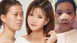 18 năm mặc cảm vì dị tật sứt môi, cô gái lên đường sang Hàn Quốc làm 5 cuộc phẫu thuật và ngoại hình mới đốn tim cộng đồng mạng