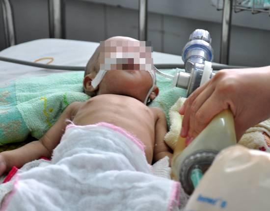 Mẹ dùng lá ổi để chữa tiêu chảy cho con 19 tháng tuổi và cái kết - Ảnh 1.