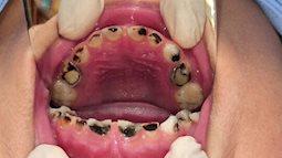 Điểm mặt các nguyên nhân gây sâu răng ở trẻ, cha mẹ biết mà phòng tránh cho con