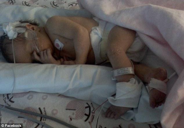 Bị sét đánh trúng khi đang mang thai tháng cuối, sản phụ được đưa vào viện cấp cứu nhưng hình hài của đứa trẻ khiến cả ekip mổ choáng váng  - Ảnh 4.