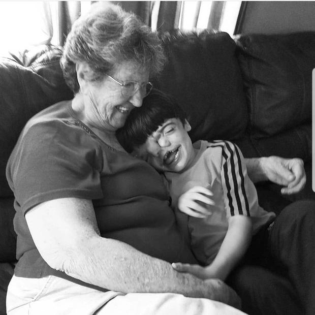 Bé trai sinh ra với 2 khuôn mặt dính liền nhau, bác sĩ khẳng định khó lòng sống sót nhưng diện mạo và cuộc sống sau 17 năm làm ai cũng kinh ngạc - Ảnh 5.