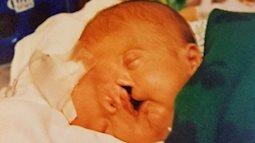 Bé trai sinh ra với 2 khuôn mặt dính liền nhau, bác sĩ khẳng định khó sống sót nhưng diện mạo và cuộc sống sau 17 năm gây kinh ngạc