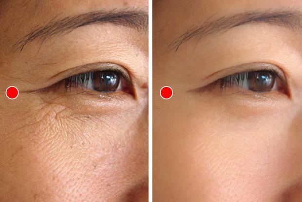 Bài tập 1 phút của người Nhật để ngăn ngừa và loại bỏ nếp nhăn quanh mắt cực hiệu quả - Ảnh 2.