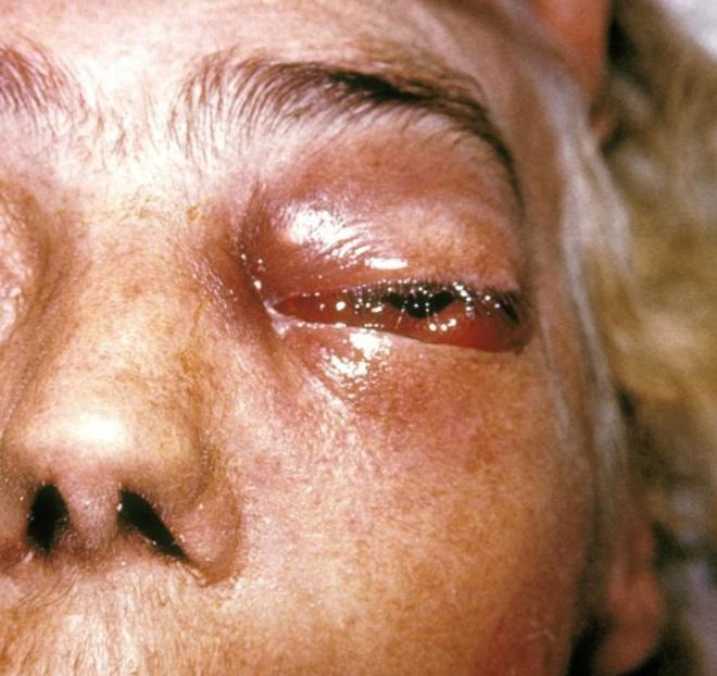 Dịch bệnh chết chóc mới khiến Ấn Độ gục ngã: 60% bệnh nhân phải cắt bỏ một phần khuôn mặt - Ảnh 2.