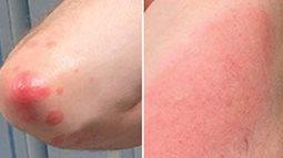 4 tác dụng phụ sau khi tiêm vaccine COVID-19 trên da hay gặp nhất: Có đáng lo ngại không?