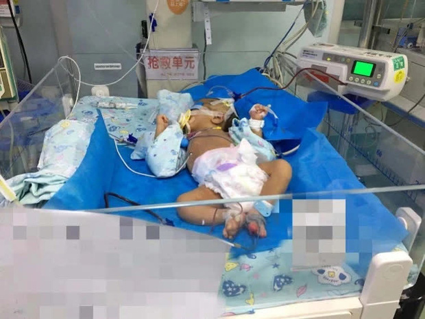 Bé trai 1 tháng tuổi bị xuất huyết não, bác sĩ cảnh báo thói quen ăn uống của mẹ có thể ảnh hưởng nghiêm trọng đến con - Ảnh 2.