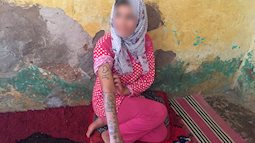 Thiếu nữ 17 tuổi bị cưỡng hiếp, tra tấn tập thể bởi 11 người đàn ông suốt 2 tháng trời, để lại những vết thương và hình xăm gây ám ảnh