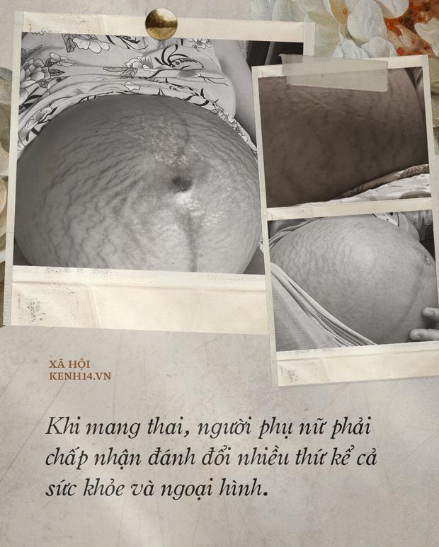 Các mẹ bầu đồng loạt khoe bụng đầy vết rạn thâm đen dưới bài đăng của Hòa Minzy: Những dấu tích của sự hi sinh, của tình yêu thương vô bờ bến - Ảnh 2.