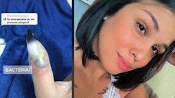 Ngón tay cái của cô gái bị sưng đau, chảy mủ sau khi làm móng, bị viêm mô tế bào, bác sĩ chỉ định phải cắt cụt để giữ tính mạng